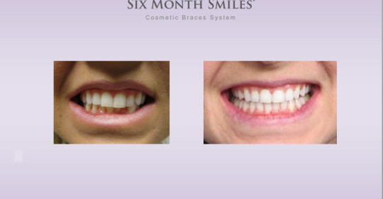 Six Month Smiles – Case Study Amy E