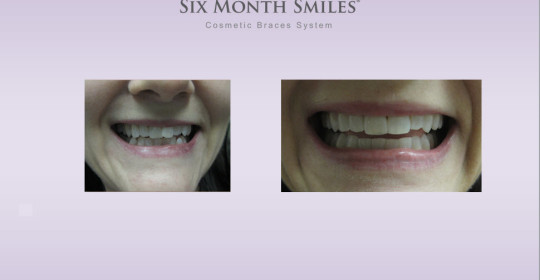 Six Month Smiles – Case Study Rolla B