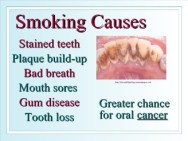 oral-health-and-you-17-728