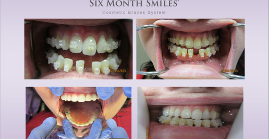 Six Month Smiles – Case Study Pam W